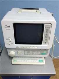 Ultrazvučni aparat marke Fokuda