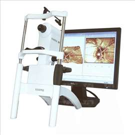 Laser HRT 2 Heidelberg Retinal Tomography