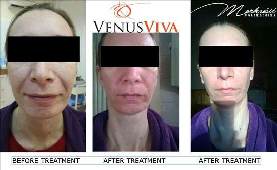 Venus Viva za napredne antiage tretmane lica