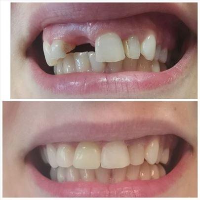 All on 4 zubne proteze Novi Sad